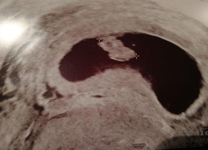 ultraschall 9 ssw